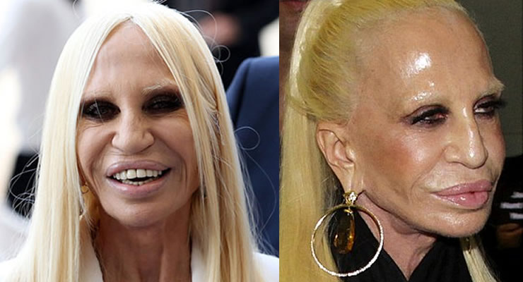 20 Plastic Surgery Disasters – Page 13 – Funtality.com