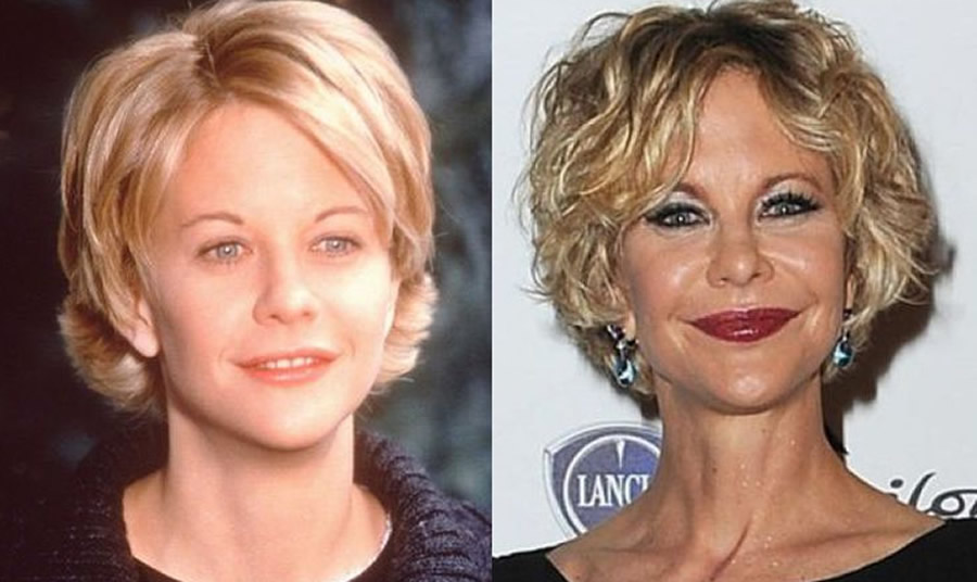 Plastic Surgery Disasters Before And After Page 9